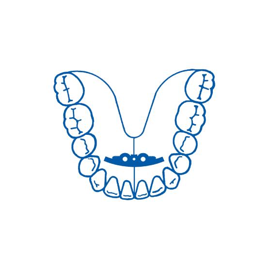 Leone tornillo en arco para mandíbula 2