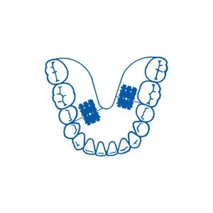Leone tornillo micro monolateral 2