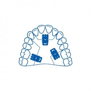 Leone tornillo súper micro monolateral con guía en u recta 2