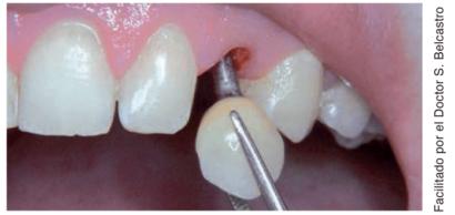 Cementación extra oral