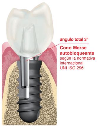 Conexión implante pilar cono morse